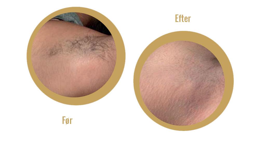 fjernelse af uønsket hårvækst